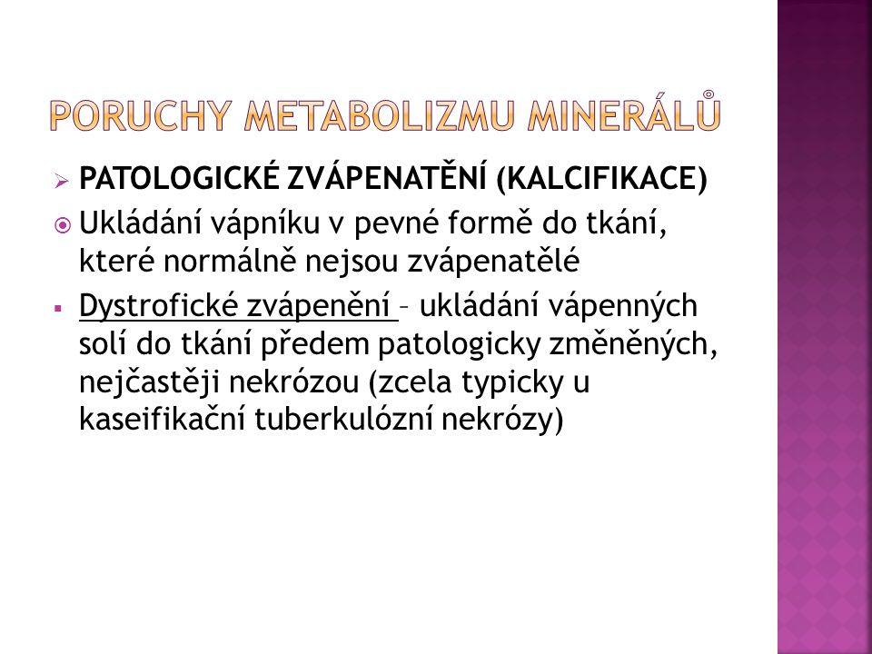  PATOLOGICKÉ ZVÁPENATĚNÍ (KALCIFIKACE)  Ukládání vápníku v pevné formě do tkání, které normálně nejsou zvápenatělé  Dystrofické zvápenění – ukládán