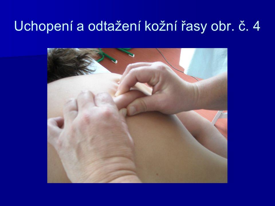 Uchopení a odtažení kožní řasy obr. č. 4