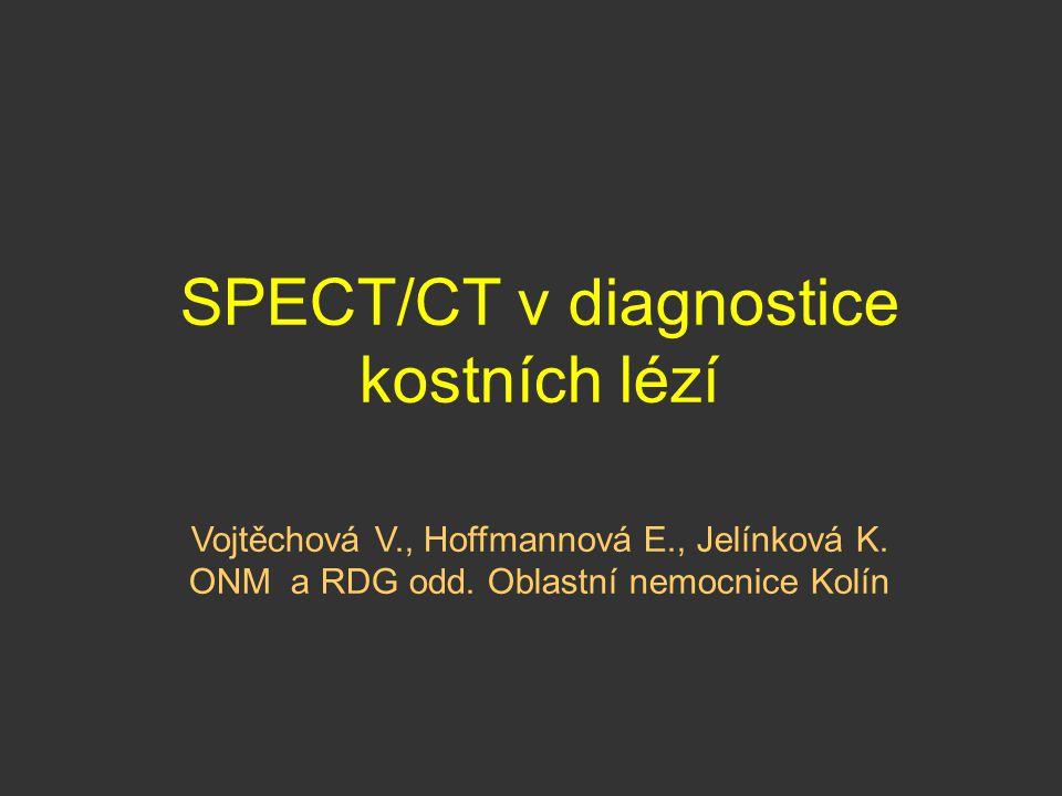 SPECT/CT v diagnostice kostních lézí Vojtěchová V., Hoffmannová E., Jelínková K. ONM a RDG odd. Oblastní nemocnice Kolín