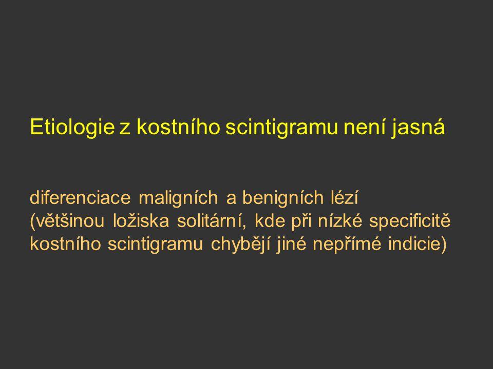 Etiologie z kostního scintigramu není jasná diferenciace maligních a benigních lézí (většinou ložiska solitární, kde při nízké specificitě kostního sc