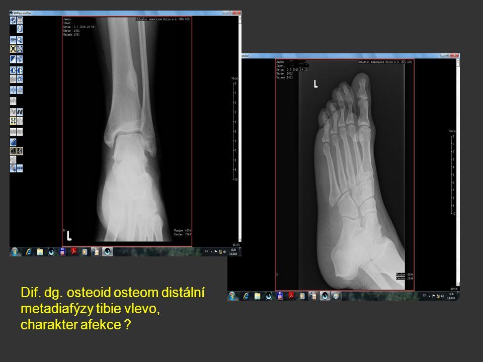 Dif. dg. osteoid osteom distální metadiafýzy tibie vlevo, charakter afekce ?