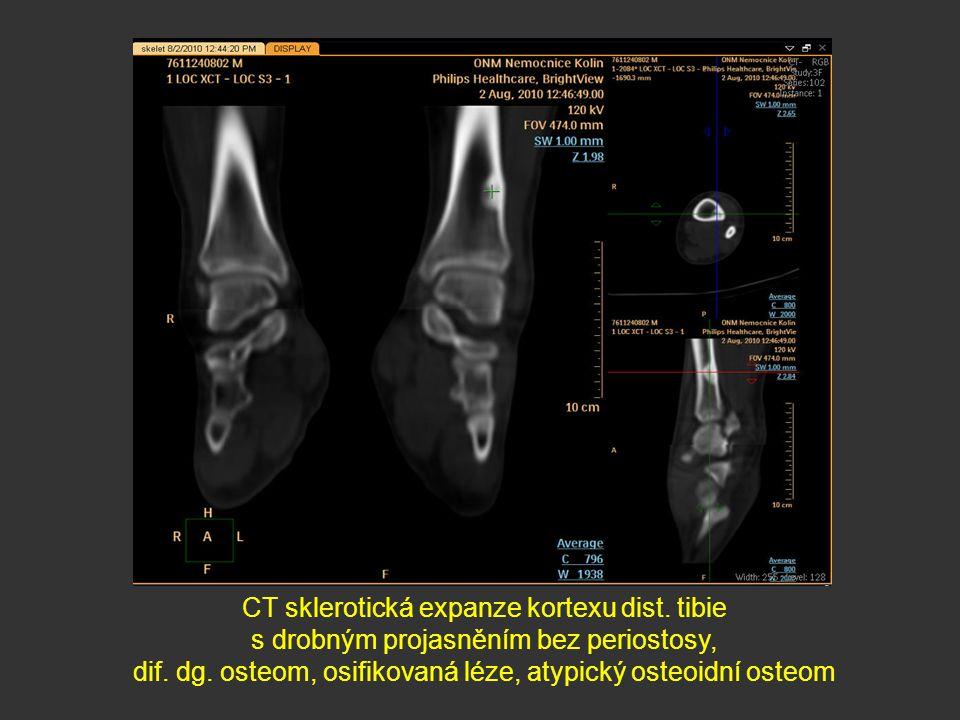 CT sklerotická expanze kortexu dist. tibie s drobným projasněním bez periostosy, dif. dg. osteom, osifikovaná léze, atypický osteoidní osteom