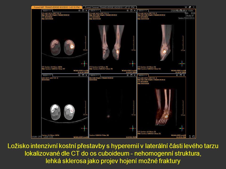 Ložisko intenzivní kostní přestavby s hyperemií v laterální části levého tarzu lokalizované dle CT do os cuboideum - nehomogenní struktura, lehká skle