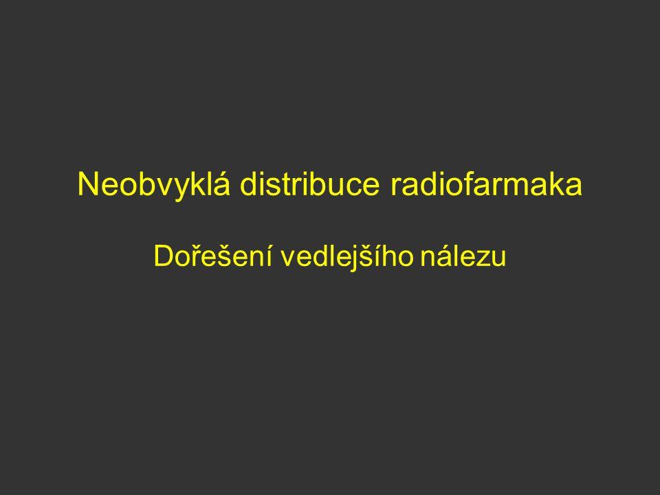 Neobvyklá distribuce radiofarmaka Dořešení vedlejšího nálezu
