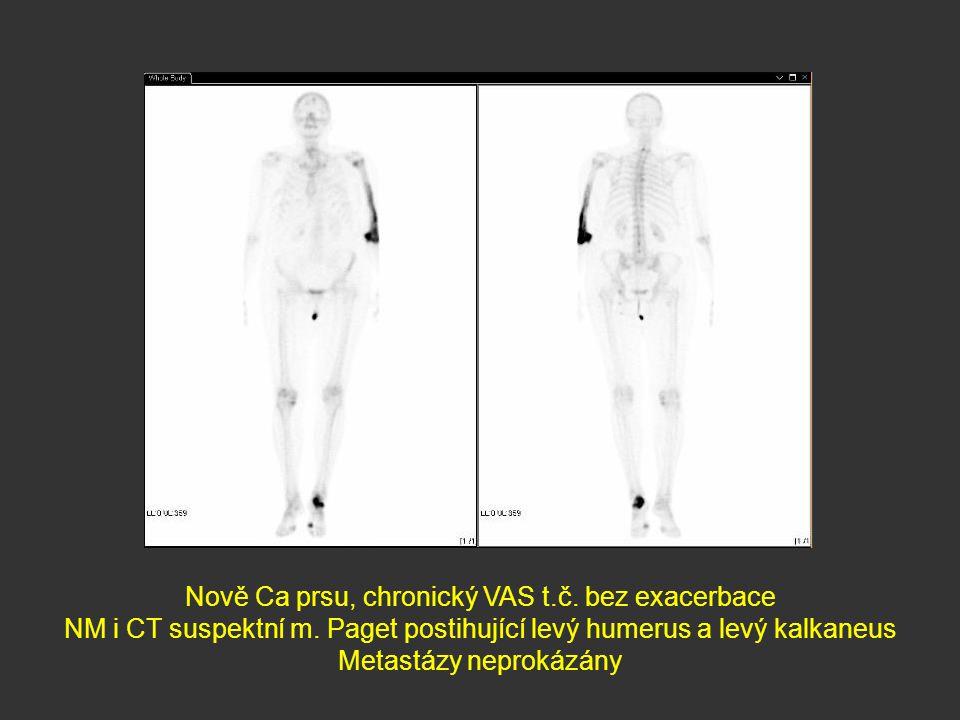 Nově Ca prsu, chronický VAS t.č. bez exacerbace NM i CT suspektní m. Paget postihující levý humerus a levý kalkaneus Metastázy neprokázány