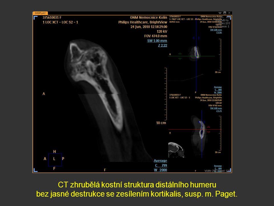 CT zhrubělá kostní struktura distálního humeru bez jasné destrukce se zesílením kortikalis, susp. m. Paget.