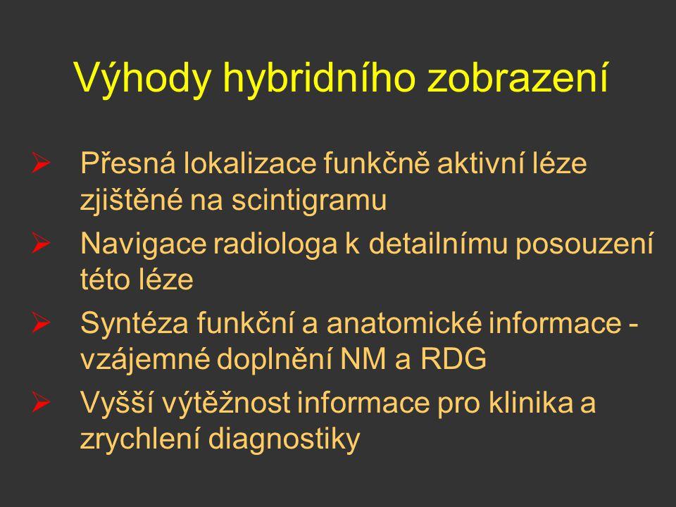 Výhody hybridního zobrazení  Přesná lokalizace funkčně aktivní léze zjištěné na scintigramu  Navigace radiologa k detailnímu posouzení této léze  S