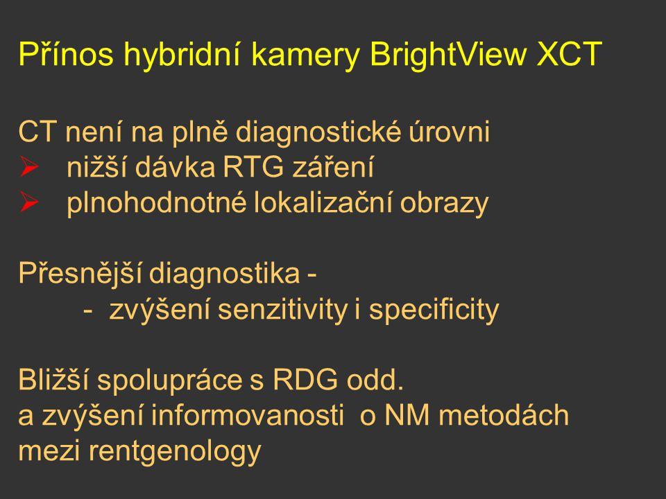 Přínos hybridní kamery BrightView XCT CT není na plně diagnostické úrovni  nižší dávka RTG záření  plnohodnotné lokalizační obrazy Přesnější diagnos