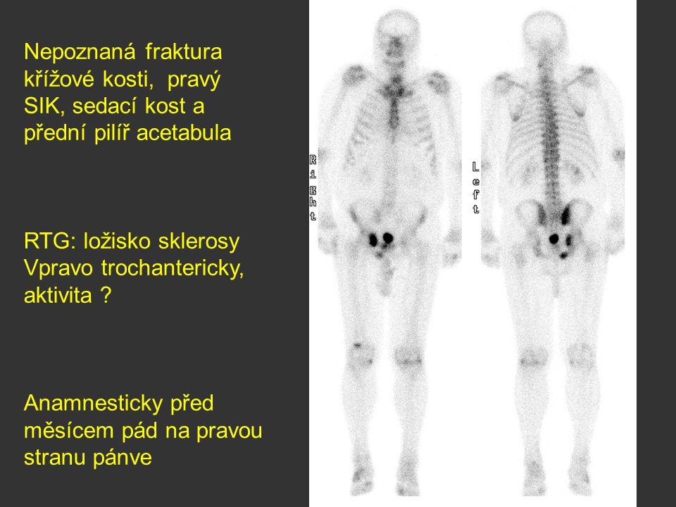 Nepoznaná fraktura křížové kosti, pravý SIK, sedací kost a přední pilíř acetabula RTG: ložisko sklerosy Vpravo trochantericky, aktivita ? Anamnesticky