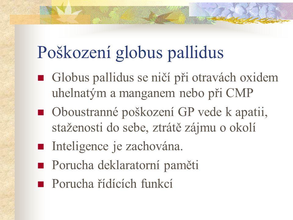 Poškození globus pallidus Globus pallidus se ničí při otravách oxidem uhelnatým a manganem nebo při CMP Oboustranné poškození GP vede k apatii, stažen