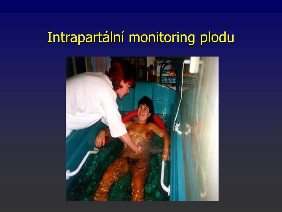 Intrapartální monitoring plodu