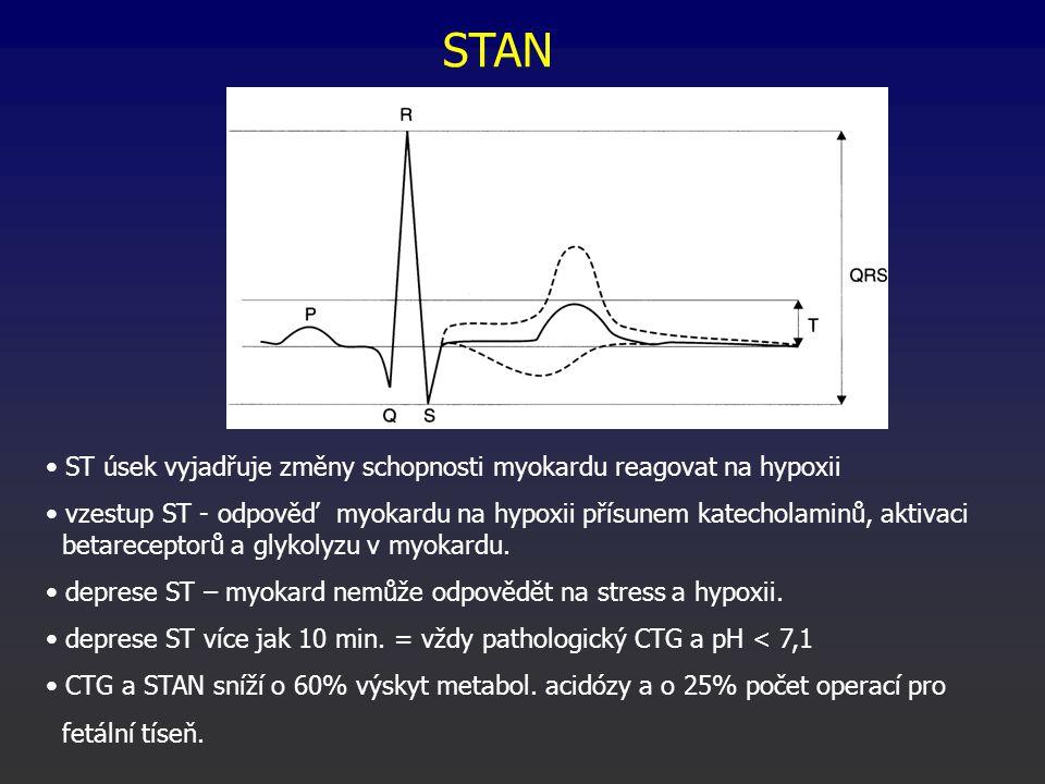 STAN ST úsek vyjadřuje změny schopnosti myokardu reagovat na hypoxii vzestup ST - odpověď myokardu na hypoxii přísunem katecholaminů, aktivaci betareceptorů a glykolyzu v myokardu.