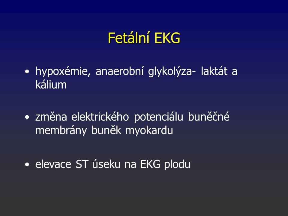 Fetální EKG hypoxémie, anaerobní glykolýza- laktát a kálium změna elektrického potenciálu buněčné membrány buněk myokardu elevace ST úseku na EKG plod