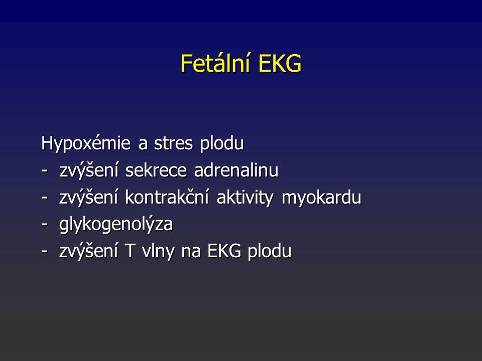 Fetální EKG Hypoxémie a stres plodu - zvýšení sekrece adrenalinu -zvýšení kontrakční aktivity myokardu -glykogenolýza -zvýšení T vlny na EKG plodu