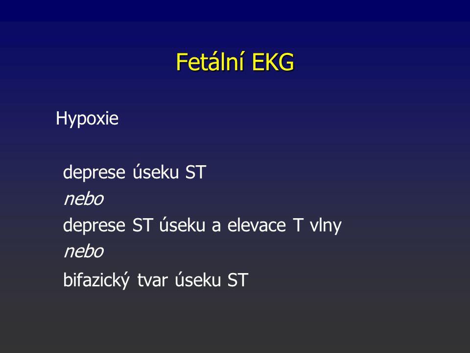 Fetální EKG Hypoxie deprese úseku ST nebo deprese ST úseku a elevace T vlny nebo bifazický tvar úseku ST