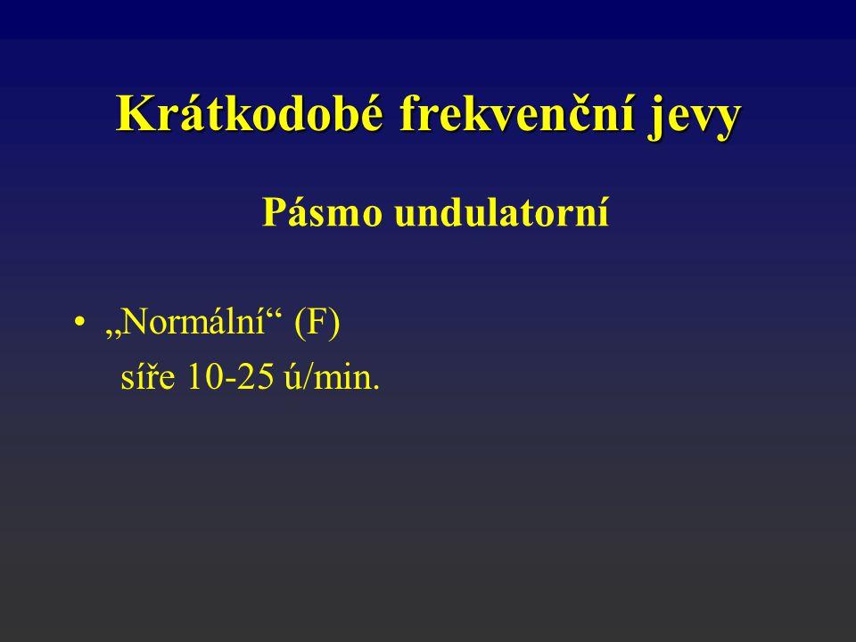 """Pásmo undulatorní """"Normální"""" (F) síře 10-25 ú/min. Krátkodobé frekvenční jevy"""