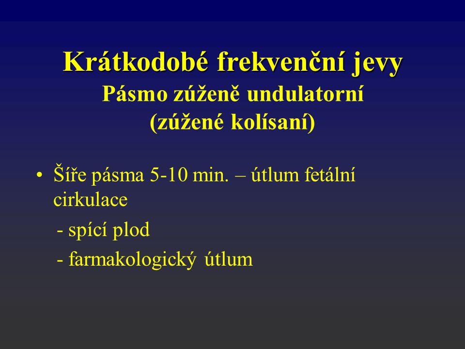 Pásmo zúženě undulatorní (zúžené kolísaní) Šíře pásma 5-10 min. – útlum fetální cirkulace - spící plod - farmakologický útlum Krátkodobé frekvenční je