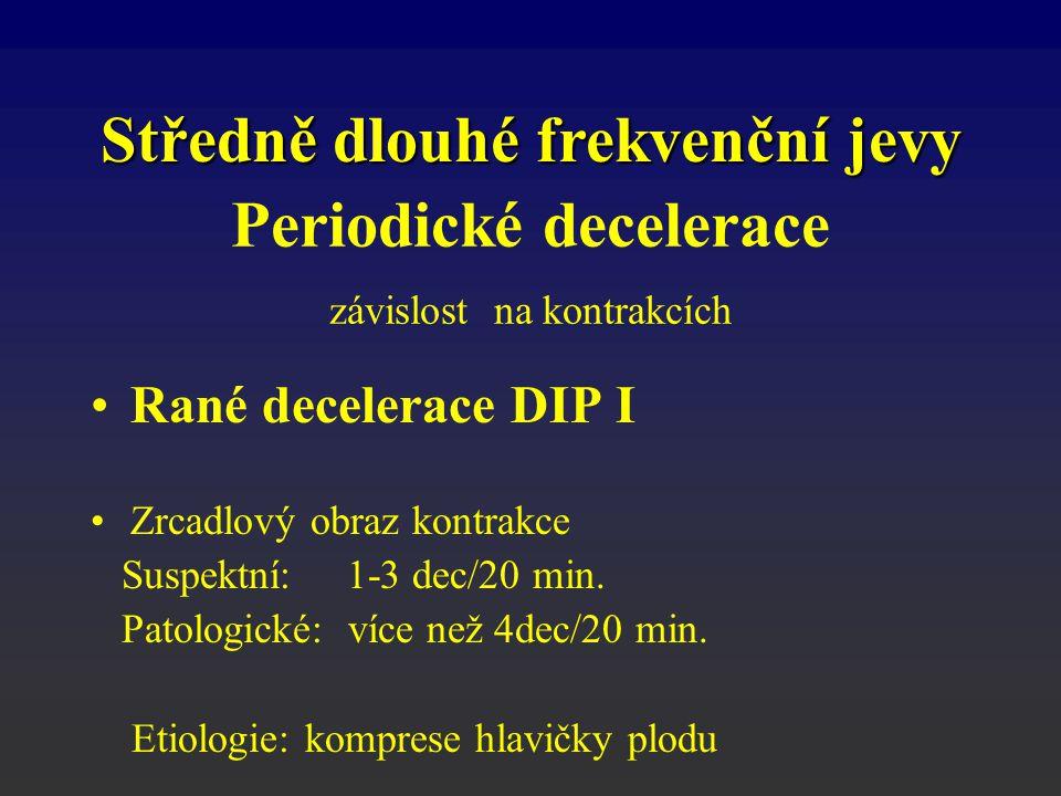 Rané decelerace DIP I Zrcadlový obraz kontrakce Suspektní: 1-3 dec/20 min. Patologické: více než 4dec/20 min. Etiologie: komprese hlavičky plodu Střed