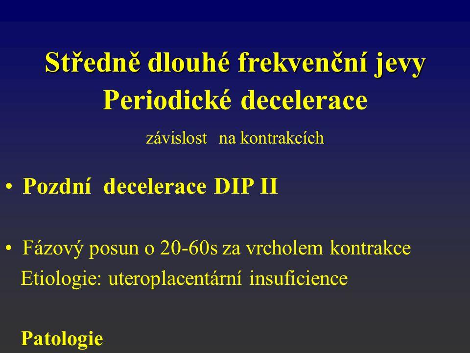 Pozdní decelerace DIP II Fázový posun o 20-60s za vrcholem kontrakce Etiologie: uteroplacentární insuficience Patologie Středně dlouhé frekvenční jevy