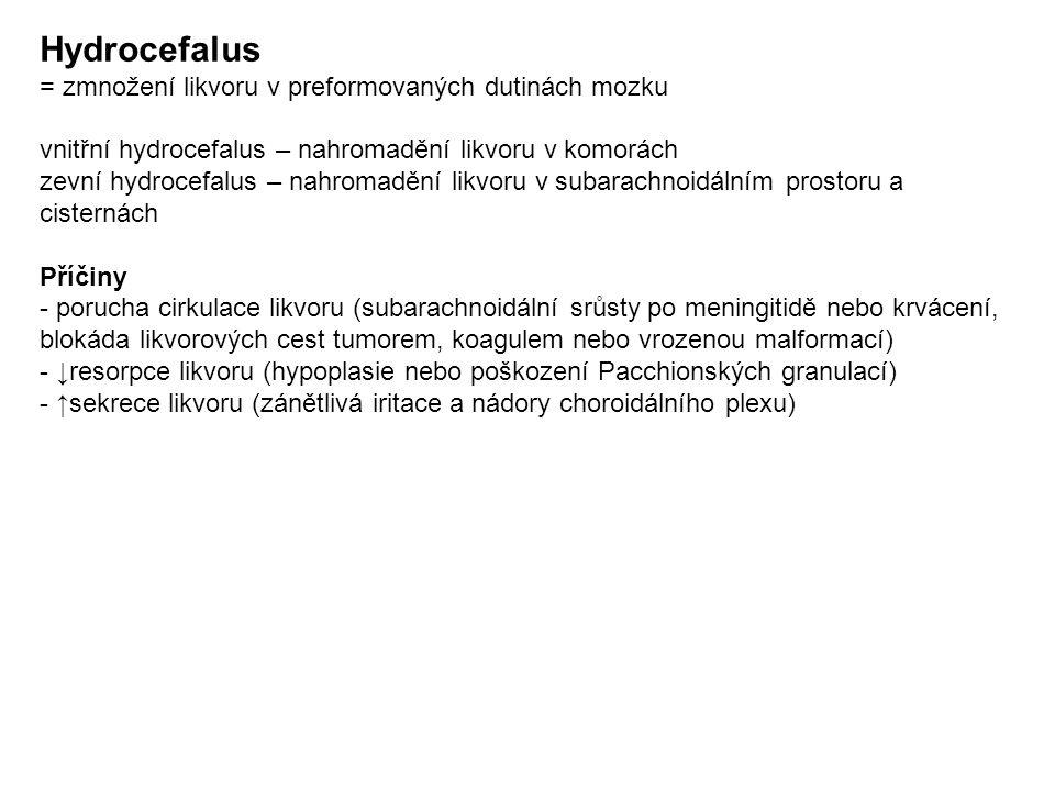 Hydrocefalus = zmnožení likvoru v preformovaných dutinách mozku vnitřní hydrocefalus – nahromadění likvoru v komorách zevní hydrocefalus – nahromadění likvoru v subarachnoidálním prostoru a cisternách Příčiny - porucha cirkulace likvoru (subarachnoidální srůsty po meningitidě nebo krvácení, blokáda likvorových cest tumorem, koagulem nebo vrozenou malformací) - ↓resorpce likvoru (hypoplasie nebo poškození Pacchionských granulací) - ↑sekrece likvoru (zánětlivá iritace a nádory choroidálního plexu)