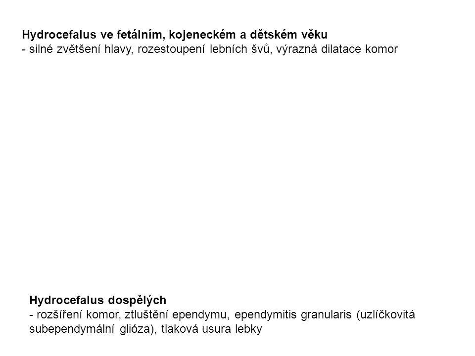 Hydrocefalus ve fetálním, kojeneckém a dětském věku - silné zvětšení hlavy, rozestoupení lebních švů, výrazná dilatace komor Hydrocefalus dospělých - rozšíření komor, ztluštění ependymu, ependymitis granularis (uzlíčkovitá subependymální glióza), tlaková usura lebky