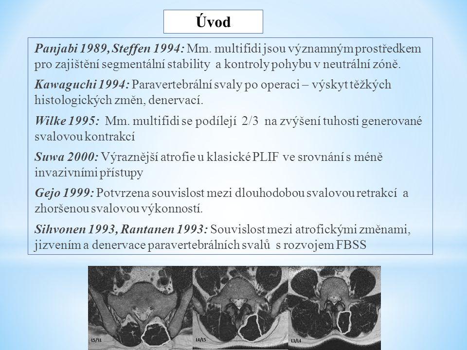 Úvod Panjabi 1989, Steffen 1994: Mm. multifidi jsou významným prostředkem pro zajištění segmentální stability a kontroly pohybu v neutrální zóně. Kawa