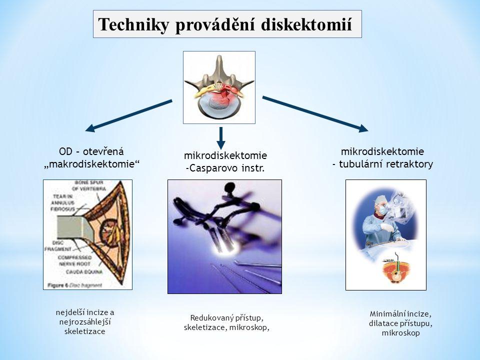 """OD – otevřená """"makrodiskektomie"""" mikrodiskektomie -Casparovo instr. mikrodiskektomie - tubulární retraktory nejdelší incize a nejrozsáhlejší skeletiza"""
