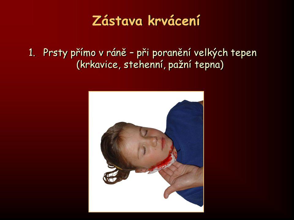 Zástava krvácení 1.Prsty přímo v ráně – při poranění velkých tepen (krkavice, stehenní, pažní tepna)