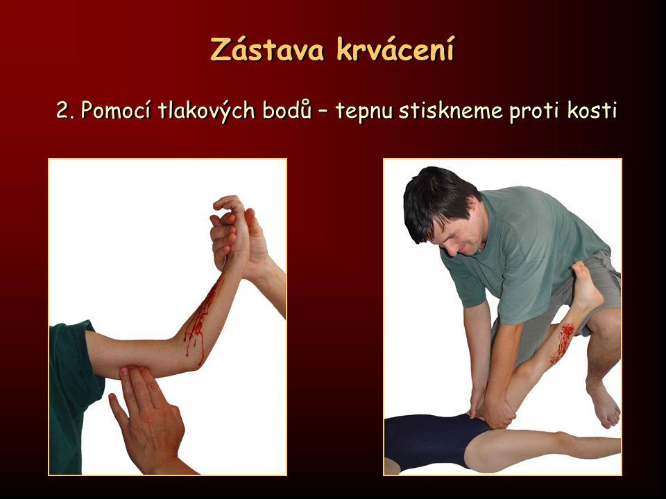 Zástava krvácení 2. Pomocí tlakových bodů – tepnu stiskneme proti kosti