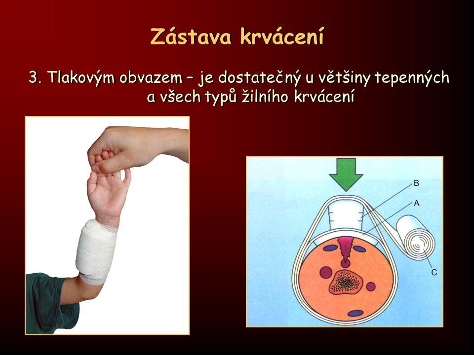 Zástava krvácení  kontrola tlakového obvazu, zda nekrvácí  u významného krvácení preventivně začít provádět protišoková opatření  znehybnění ošetřené části těla  dle rozsahu poranění přivolat ZZS, event.