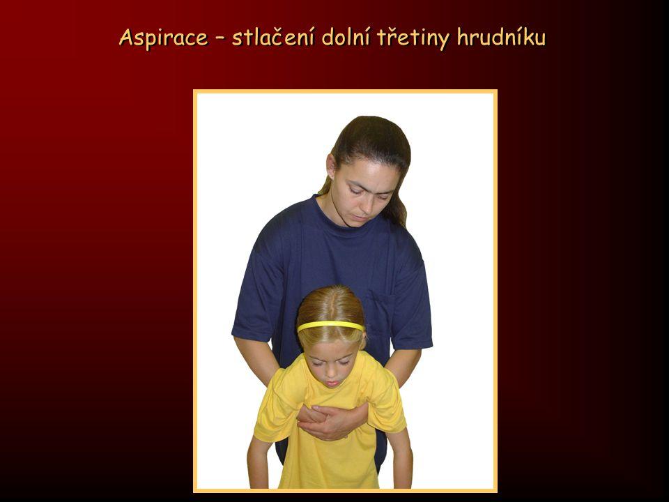 Aspirace – Heimlichův manévr