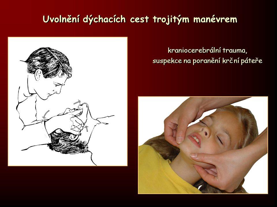 Uvolnění dýchacích cest trojitým manévrem kraniocerebrální trauma, suspekce na poranění krční páteře