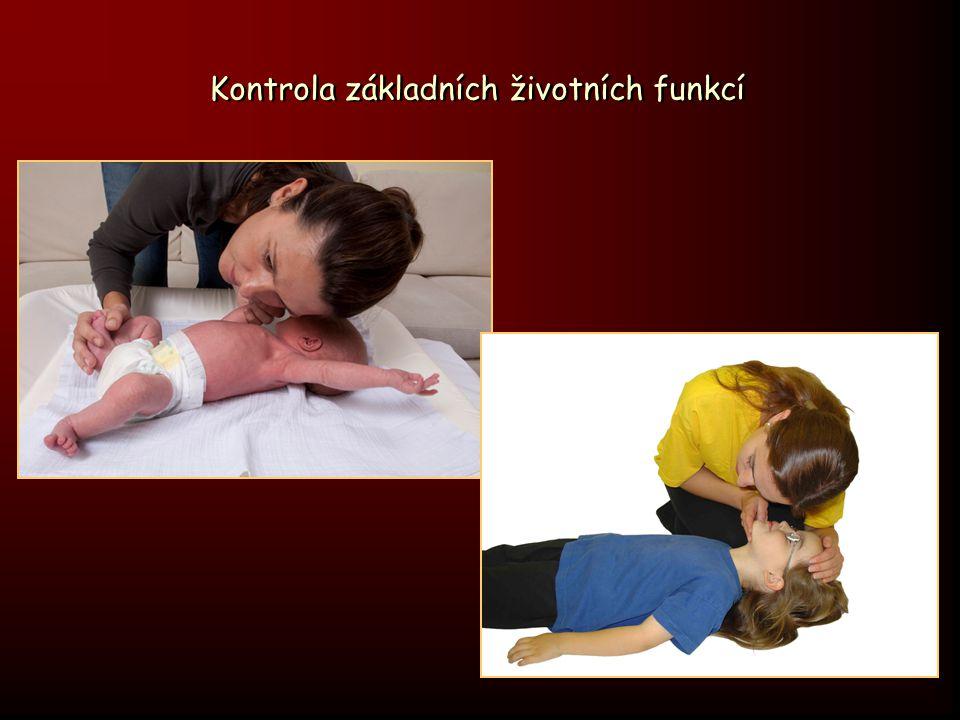 B - zajištění ventilace dýchání z plic do plic ústy * zahájit 5 umělými vdechy (2 efektivní) * vdechovat příslušné objemy - objem, zvedající viditelně a přiměřeně hrudník - u dětí nedýchat proti odporu !.