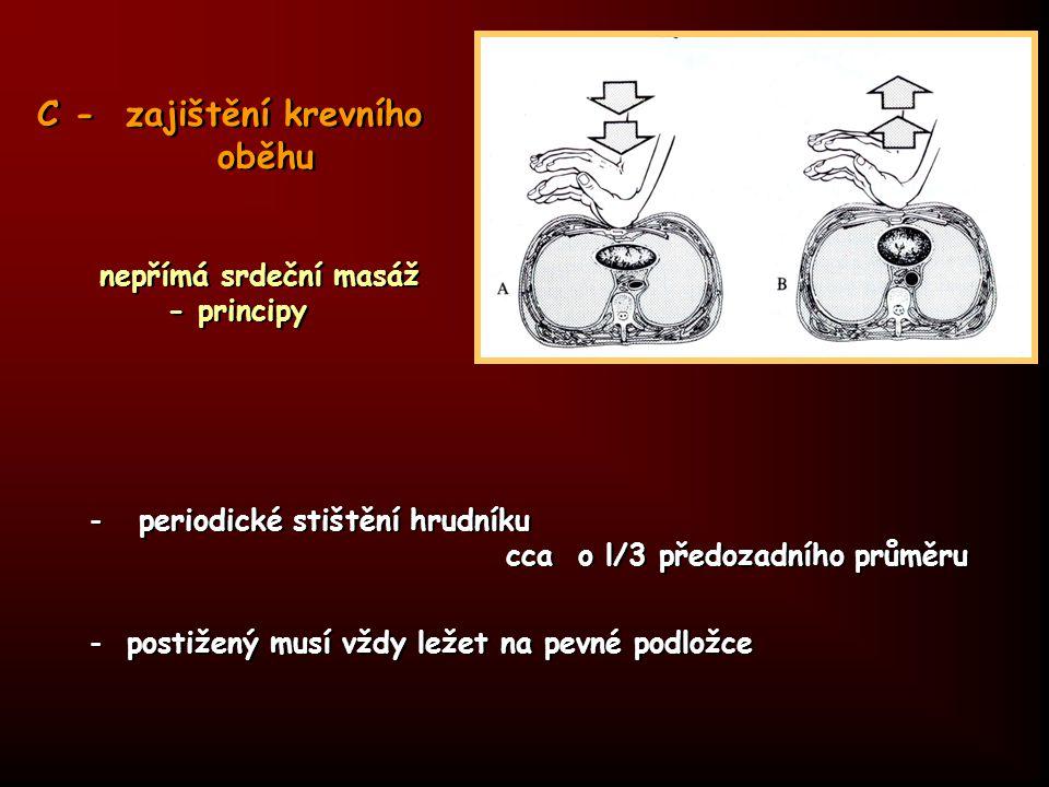 C - zajištění krevního oběhu nepřímá srdeční masáž - principy - periodické stištění hrudníku cca o l/3 předozadního průměru - postižený musí vždy leže