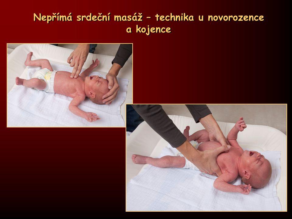 Nepřímá srdeční masáž – technika u novorozence a kojence