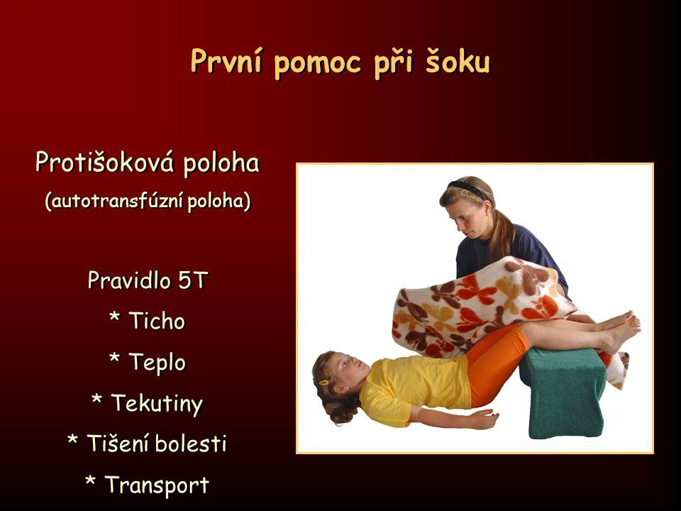 První pomoc při šoku Protišoková poloha (autotransfúzní poloha) Pravidlo 5T * Ticho * Teplo * Tekutiny * Tišení bolesti * Transport Protišoková poloha
