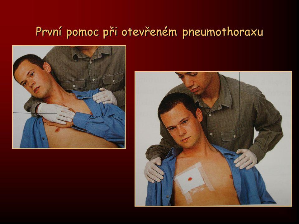 První pomoc při otevřeném pneumothoraxu