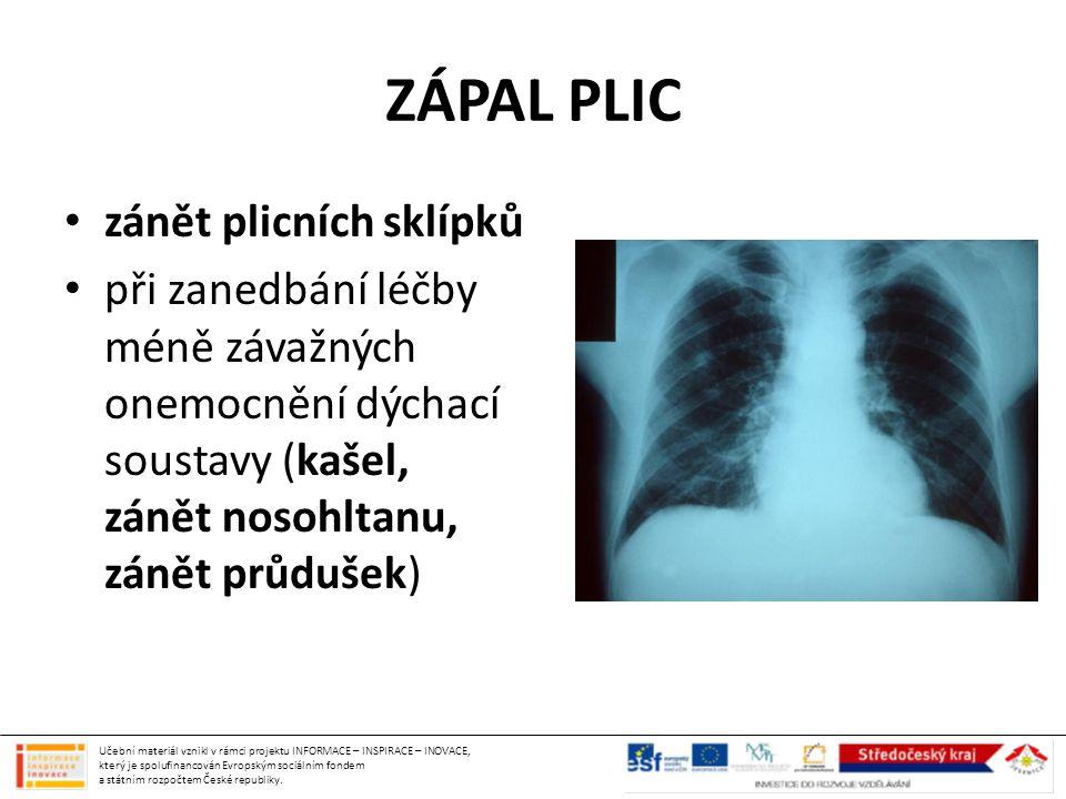 ZÁPAL PLIC zánět plicních sklípků při zanedbání léčby méně závažných onemocnění dýchací soustavy (kašel, zánět nosohltanu, zánět průdušek) Učební mate