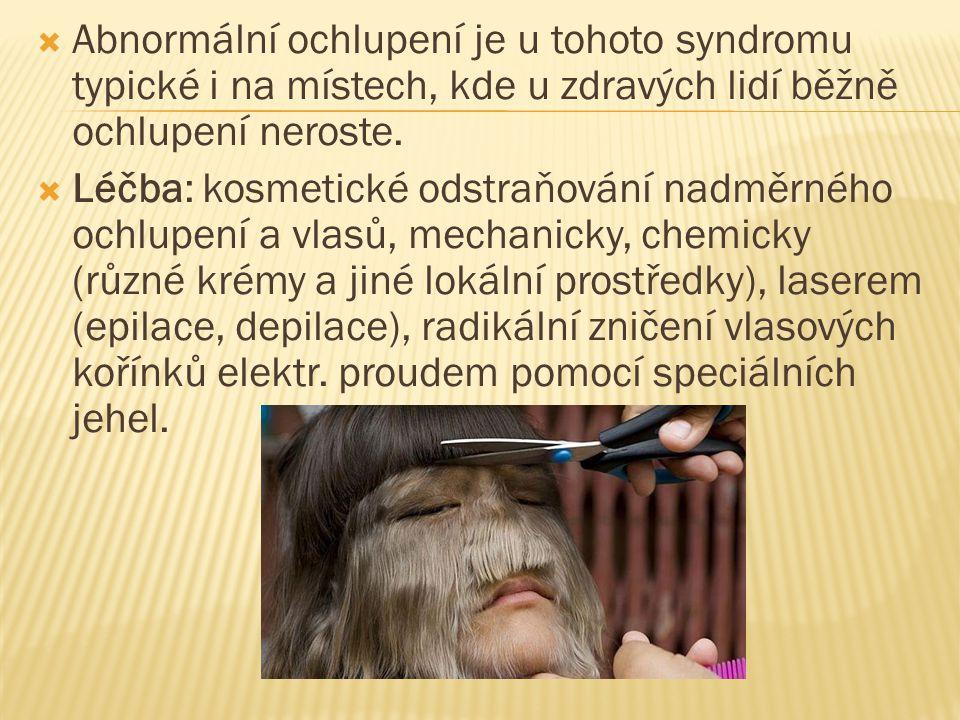  Abnormální ochlupení je u tohoto syndromu typické i na místech, kde u zdravých lidí běžně ochlupení neroste.  Léčba: kosmetické odstraňování nadměr