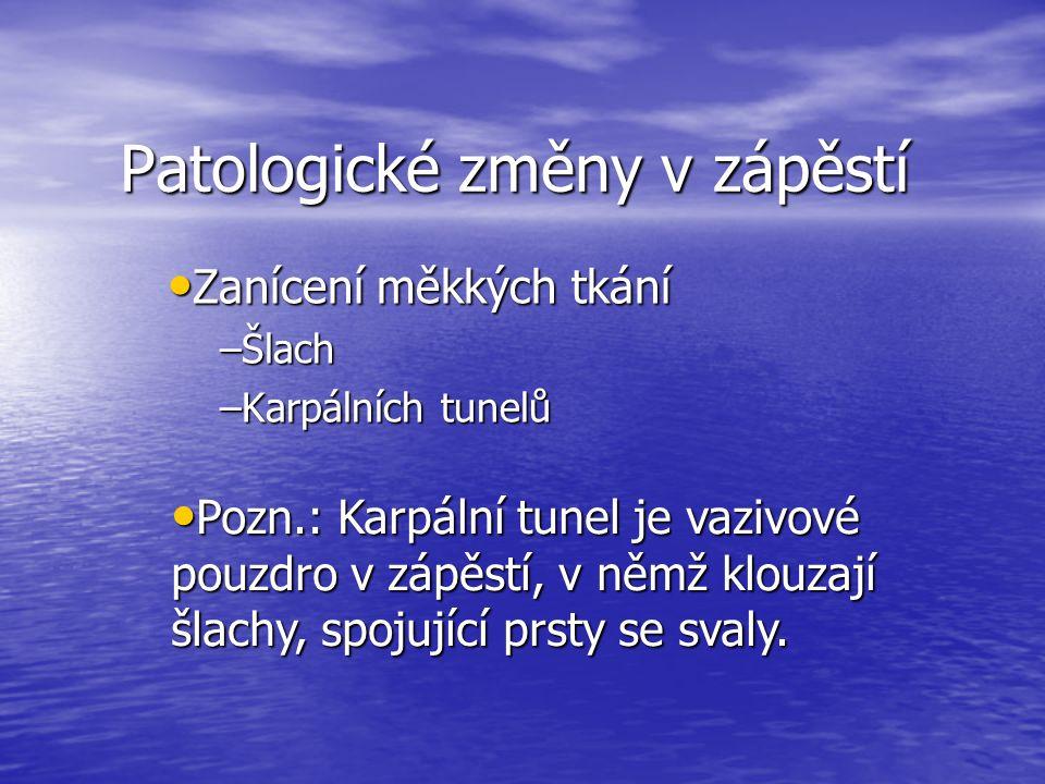 Patologické změny v zápěstí Zanícení měkkých tkání Zanícení měkkých tkání –Šlach –Karpálních tunelů Pozn.: Karpální tunel je vazivové pouzdro v zápěstí, v němž klouzají šlachy, spojující prsty se svaly.