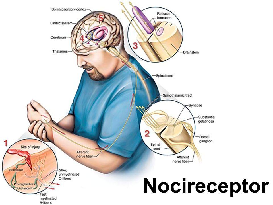 Nocireceptor
