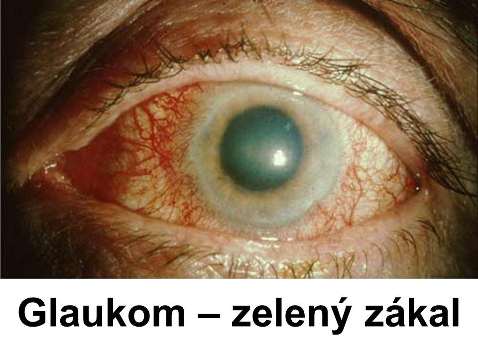 Glaukom – zelený zákal