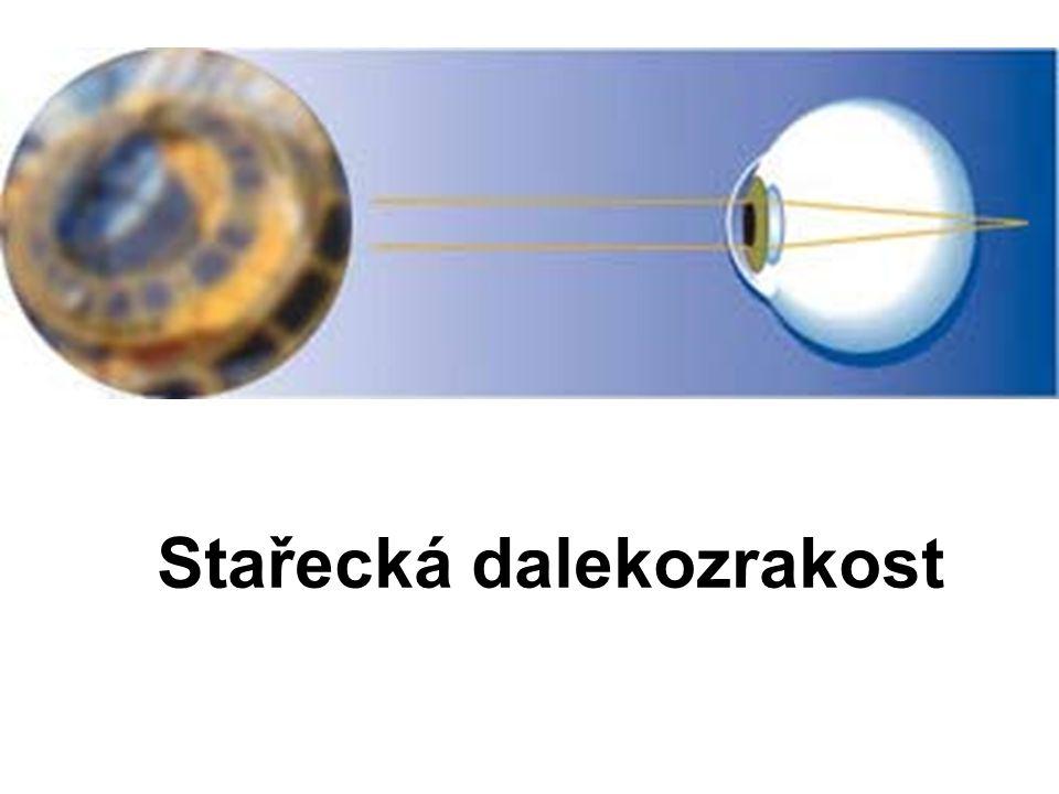 Stařecká dalekozrakost