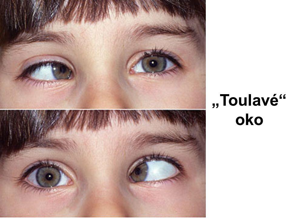 """Toulavé"" oko"