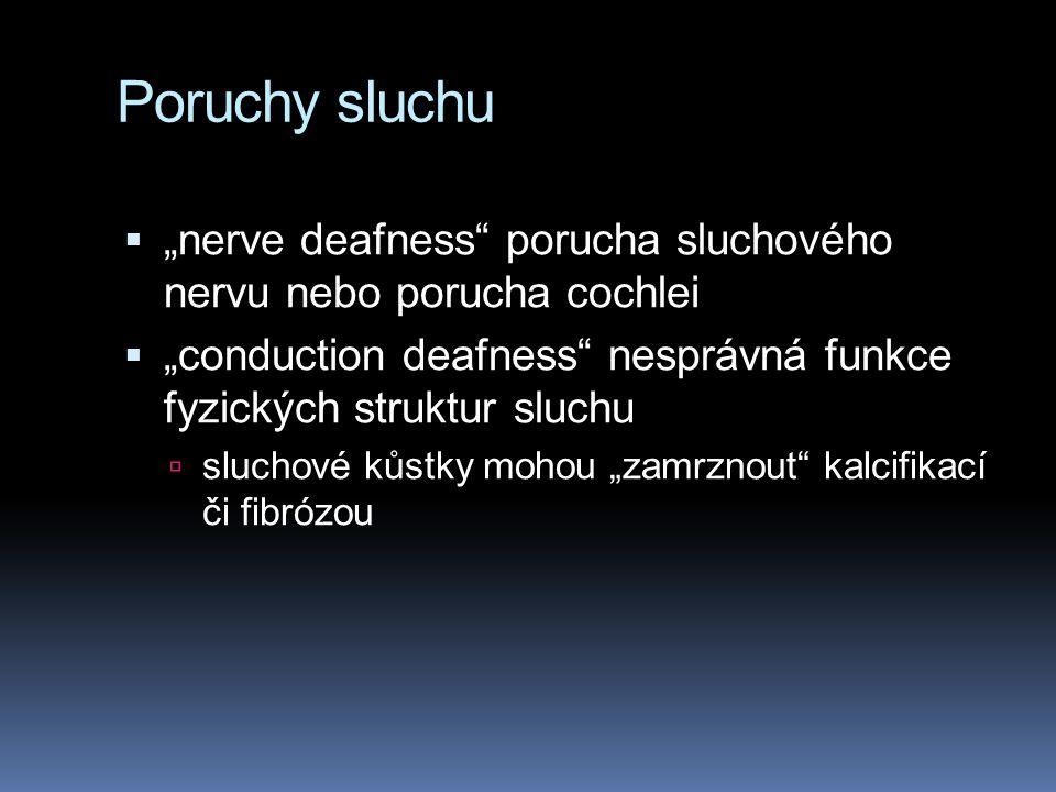"""Poruchy sluchu  """"nerve deafness"""" porucha sluchového nervu nebo porucha cochlei  """"conduction deafness"""" nesprávná funkce fyzických struktur sluchu  s"""