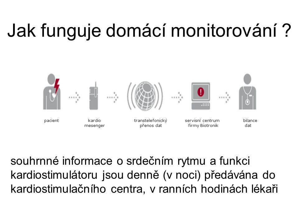 Jak funguje domácí monitorování ? souhrnné informace o srdečním rytmu a funkci kardiostimulátoru jsou denně (v noci) předávána do kardiostimulačního c