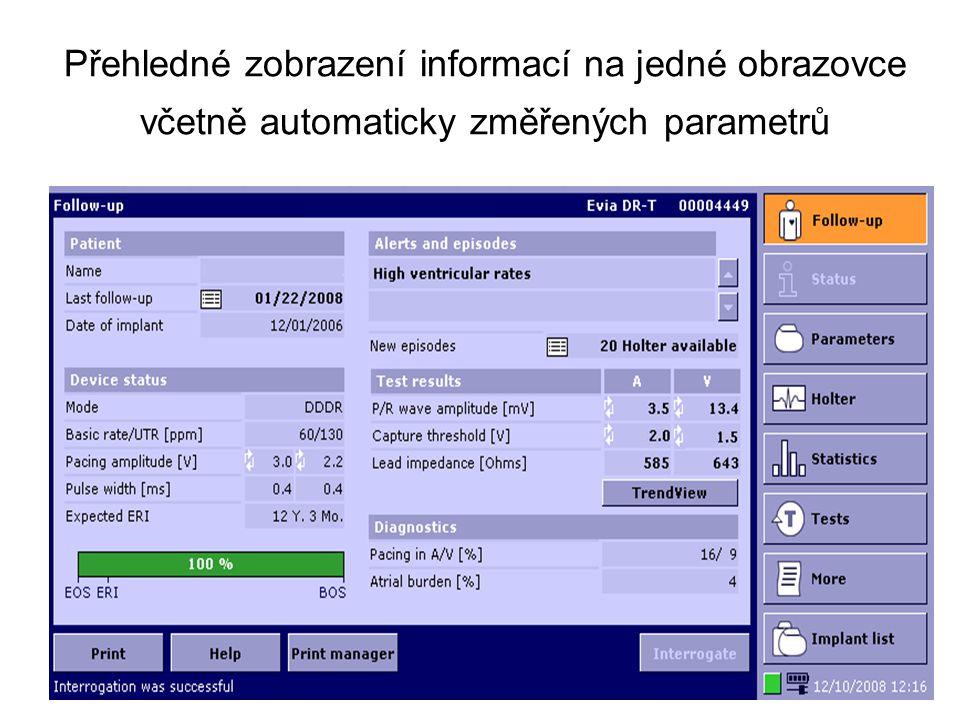 Přehledné zobrazení informací na jedné obrazovce včetně automaticky změřených parametrů