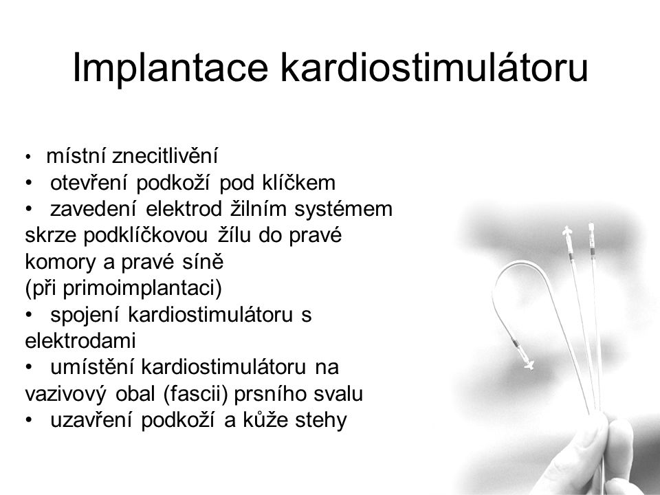 Implantace kardiostimulátoru místní znecitlivění otevření podkoží pod klíčkem zavedení elektrod žilním systémem skrze podklíčkovou žílu do pravé komory a pravé síně (při primoimplantaci) spojení kardiostimulátoru s elektrodami umístění kardiostimulátoru na vazivový obal (fascii) prsního svalu uzavření podkoží a kůže stehy