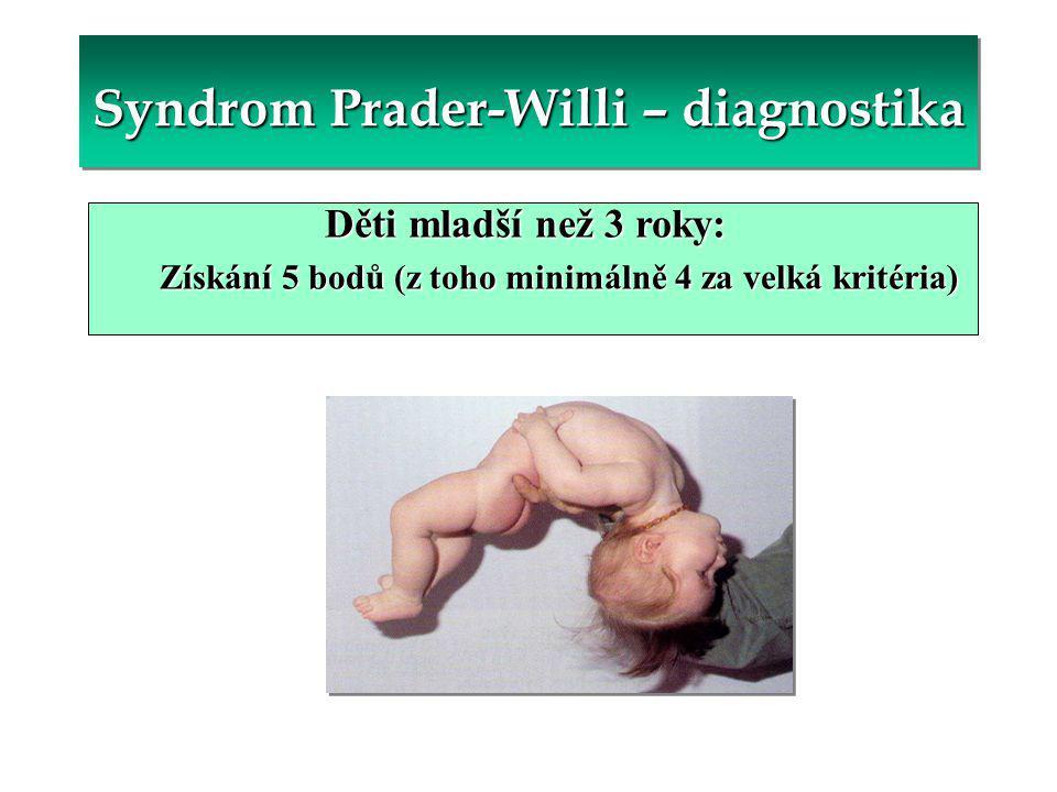Syndrom Prader-Willi – diagnostika Děti mladší než 3 roky: Získání 5 bodů (z toho minimálně 4 za velká kritéria)