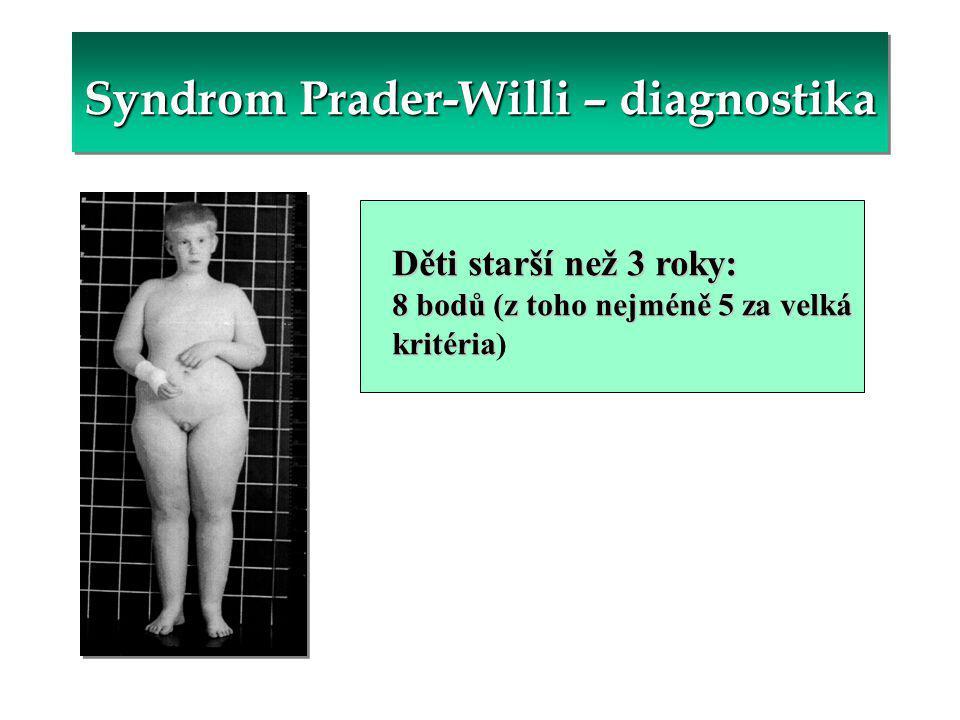 Syndrom Prader-Willi – diagnostika Děti starší než 3 roky: 8 bodů (z toho nejméně 5 za velká kritéria kritéria)
